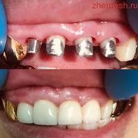 Стоматолог Омурбек Кутбаев 89253035319