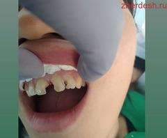 Стоматолог Осмонов Ормон Сокольники  89255953424