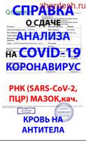 Жардам ксерокөчкө сыноо (Covid-19) Коронавирус жумуш жана чыгуу