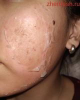 Чистка лица. Лечение угревой сыпи.