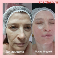 Массаж, Хиджама, Косметология, м Дубровка, от метро 2 минут