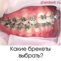Лечение пломба от 1000р ОТ МЕТРО 1 МИНУТА